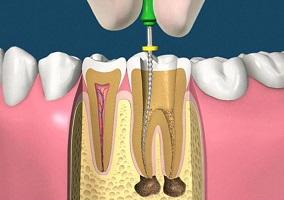 Endodonzia intervento devitalizzazione dente radici