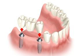 Protesi dentaria, ponti, faccette
