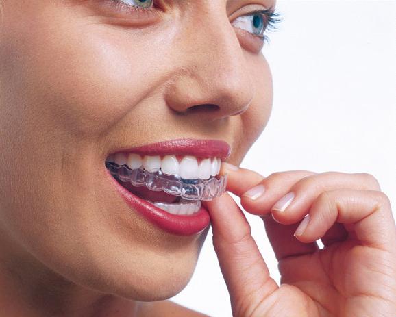 Invisalign apparecchio trasparente ortodonzia invisibile