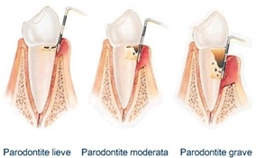 Parodontite e gengivite