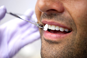 Faccette estetiche, faccette dentali