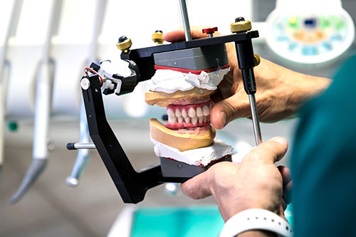 Implantologia dentale - Impianto dentale vicino Chivasso / Torino